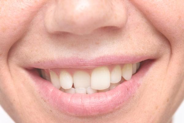 Crooked and Misaligned Teeth