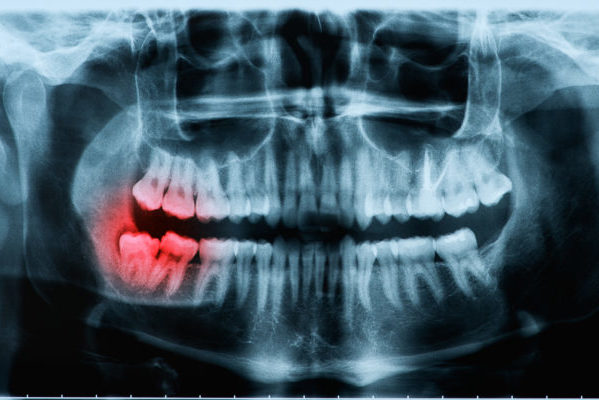 Wisdom tooth pain treatment