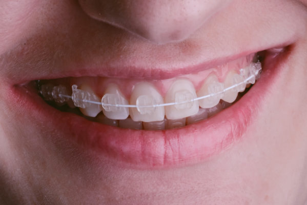 Braces Treatment Moorooka