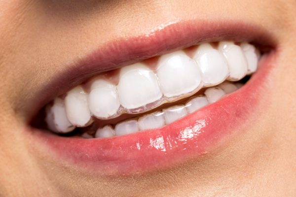 Invisalign Treatment Moorooka